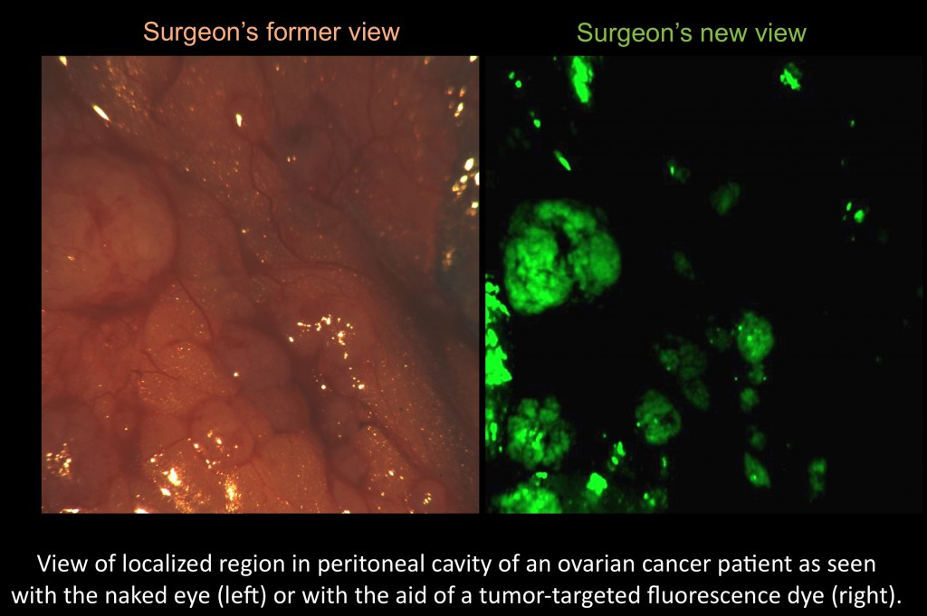 A surgeon's view of ovarian cancer cells with and without the tumor-targeted fluorescent imaging agent. (Image courtesy of Philip Low)